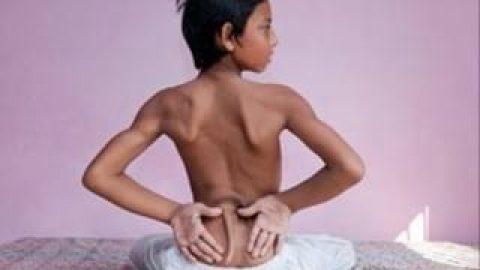 نوجوان هندی که بخاطر دمش مقدس شد!