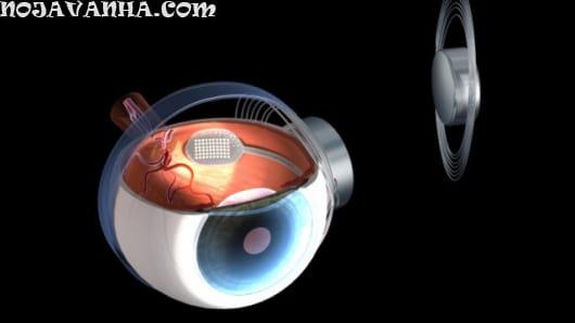 Bionic eye یا چشم رباتی