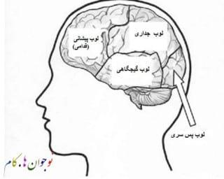 brain.nojavanha (2)