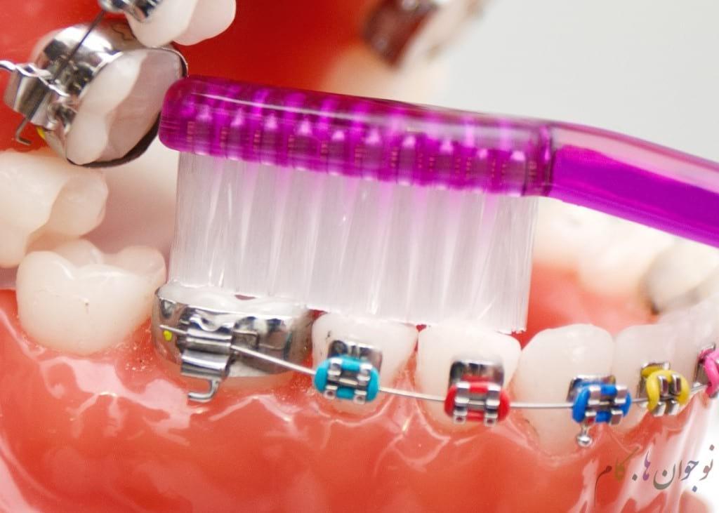 Orthodontics.nojavanha (1)