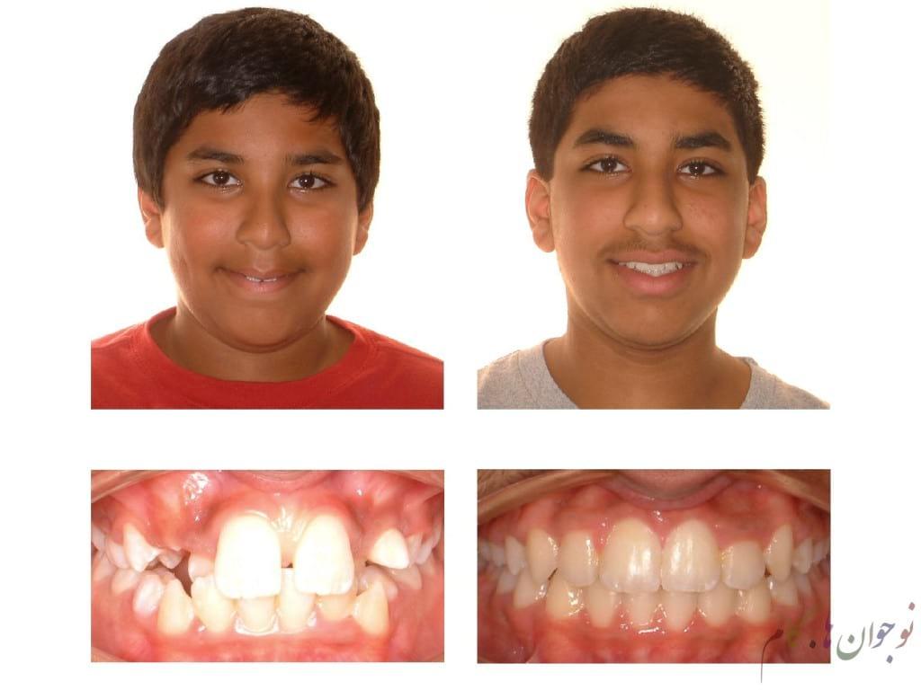 Orthodontics.nojavanha (2)