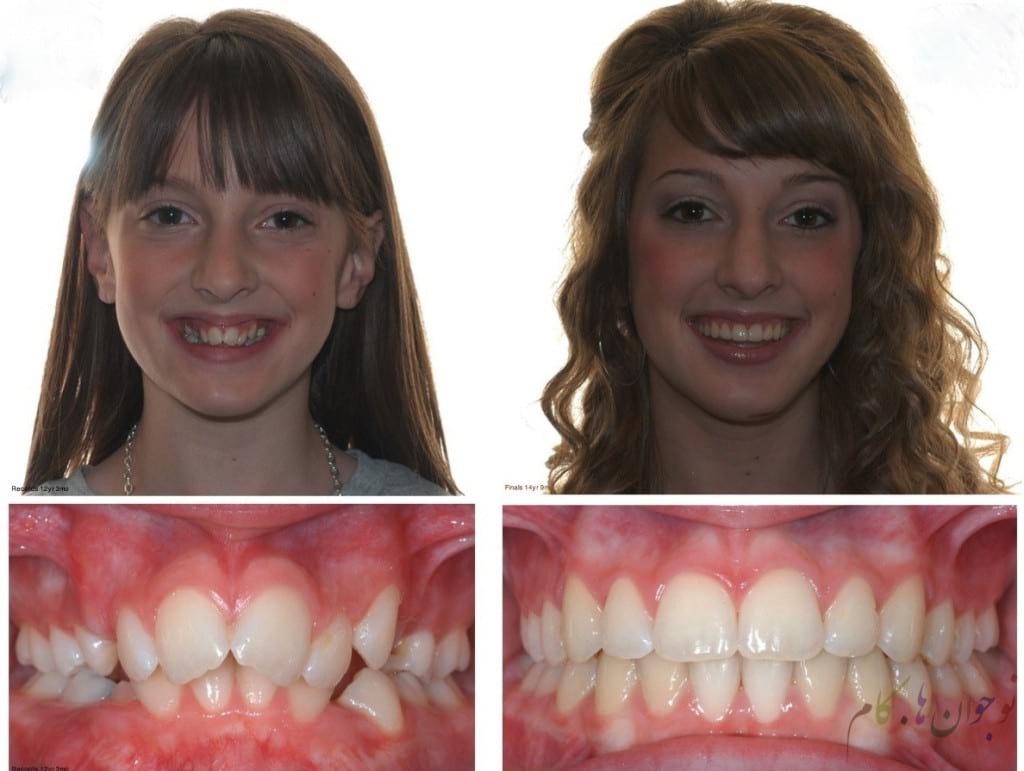 Orthodontics.nojavanha (3)
