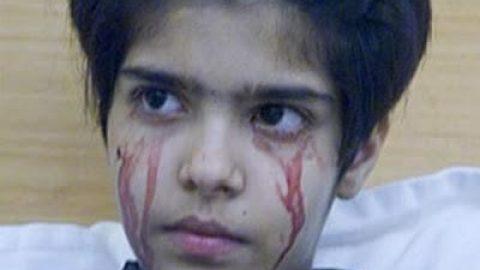 نوجوانی که خون گریه می کند