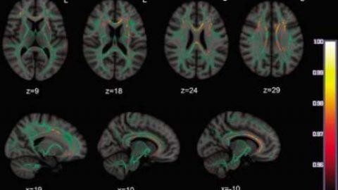 فراگیری زبان دوم از ۱۰ سالگی عامل برخورداری از ذهن هوشیارتر در میانسالی