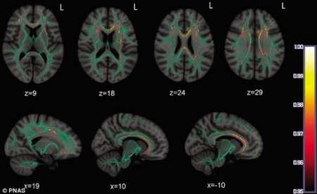 فراگیری زبان دوم از 10 سالگی عامل برخورداری از ذهن هوشیارتر در میانسالی