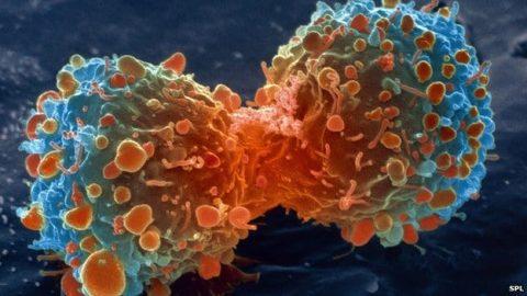اکثر سرطان ها نتیجه بدشانسی هستند