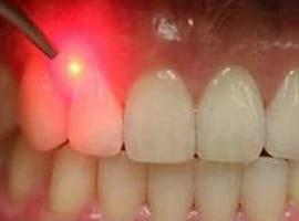 بیماری هایی که در پی بیماری های دندان می آیند
