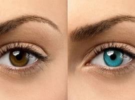 خطرات جراحی تغییر رنگ چشم