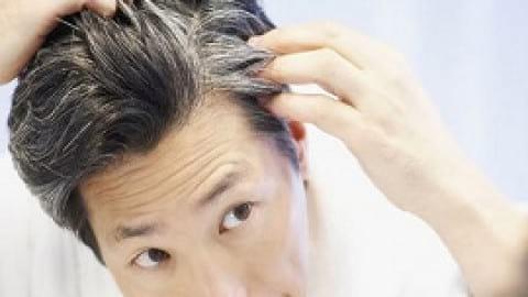 روشهایی برای کاهش ریزش مو