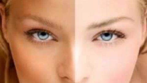 علل تیره شدن پوست و راه های درمان آن