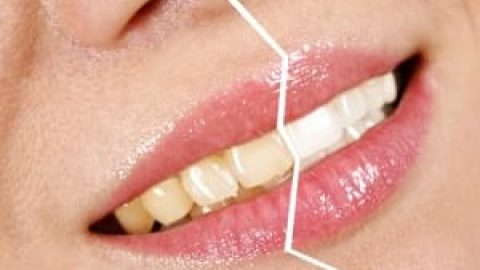 چگونه از زرد شدن دندان ها جلوگیری کنیم؟