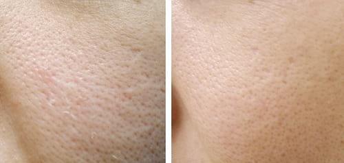 منافذ پوست1
