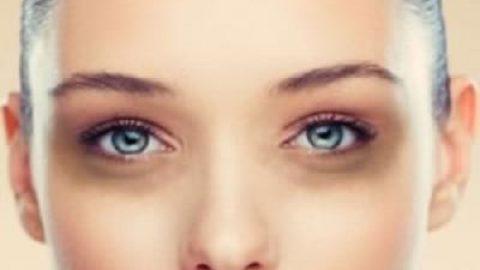 چرا زیر چشم ها سیاه و کبود می شود؟