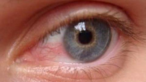 آلودگی هوا باعث عارضههای چشمی میشود