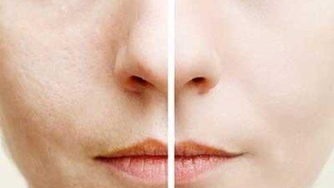 راه های طبیعی و دائمی برای کاهش منافذ پوست
