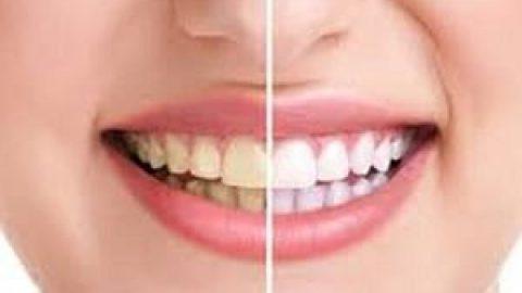 این خوراکی ها مثل وایتکس دندان هایتان را سفید می کنند