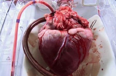 قلب انسان (3)