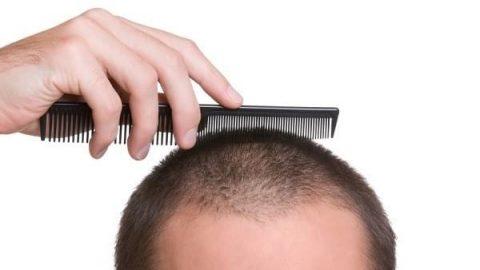 قند تهدیدی برای موهای شما!