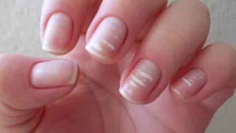 آیا لکه های سفید ناخن نشانه کمبود کلسیم است؟