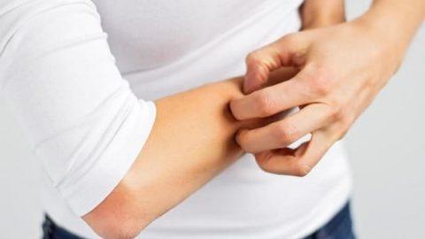 اگزما و خارش پوست را با این درمان های خارق العاده برطرف کنید!