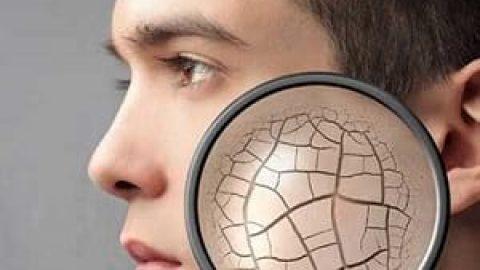درمان خشکی پوست و مو در بهار