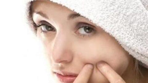 درمان فوری جوش صورت