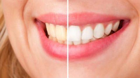 برطرف کردن جرم دندان با روشهای طبیعی