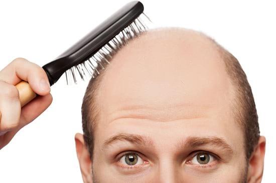بهترین داروهای خوراکی ضد ریزش مو!