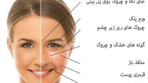 غذاهایی که پوست صورت را تغییر می دهند!