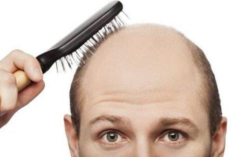 مواد غذایی مفید برای افزایش رشد مو!