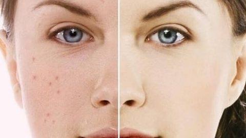 چگونه پوستی بدون لک داشته باشیم؟