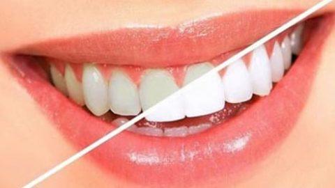 مقابله با پلاک دندان با یک دهانشویه خانگی