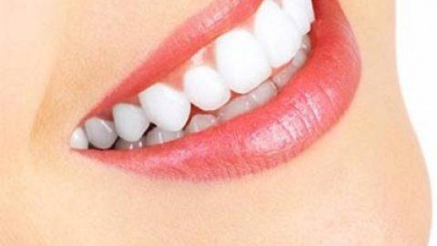 چگونه از شر جرم دندان خلاص شویم؟