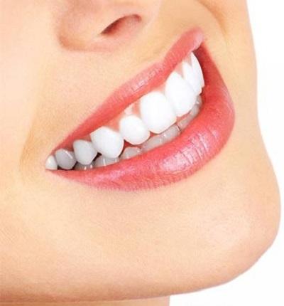 جرم گیری دندان (1)