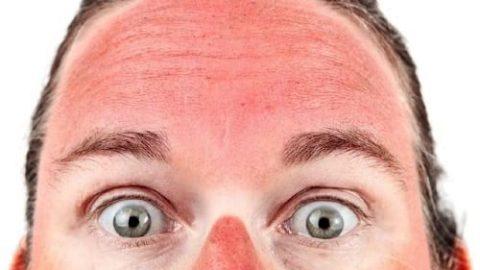 ماسک هایی برای درمان آفتاب سوختگی!