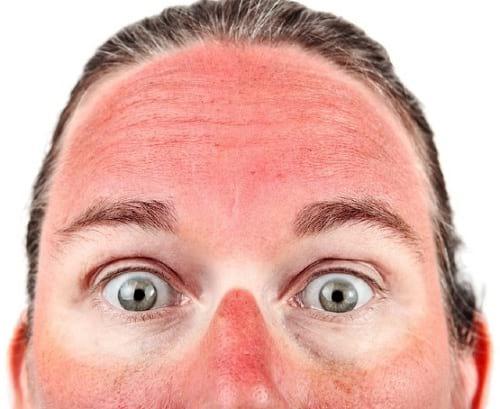 آفتاب سوختگی (1)