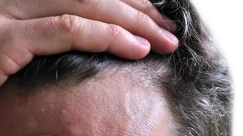 تغییر ظاهر موها، خبر از کدام بیماریها می دهد؟