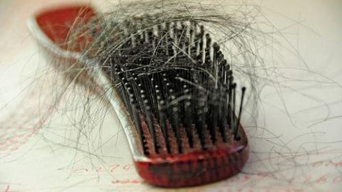 اگر به ریزش موی شدید مبتلا هستید؛ بخوانید