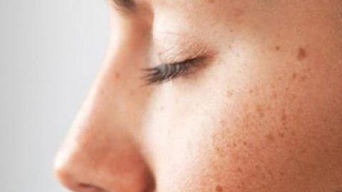 انواع لکه های پوستی را بشناسیم