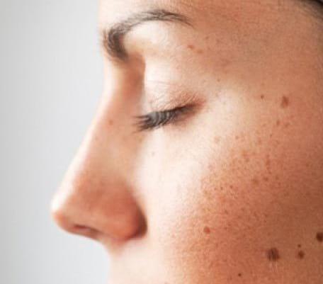لکه های پوستی (1)