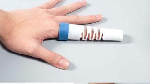 ابزاری ابتکاری برای شکستگی انگشت!