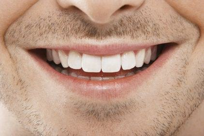 دندان سفید (1)