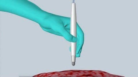 تشخیص سرطان در ۱۰ ثانیه با نوعی قلم!