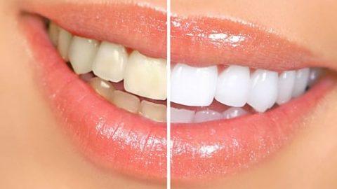 آسیب هایی که لمینت به دندان ها می زند!