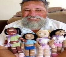عروسک هایی که لک و پیس دارند – عروسک خاص با لک و پیس