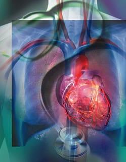 جراحی قلب، معرفی رشته