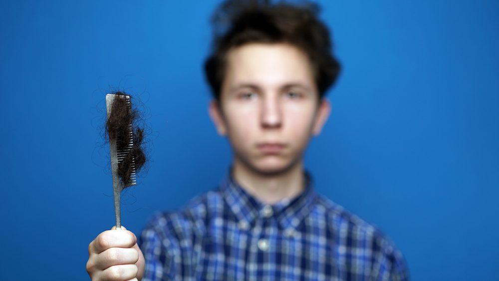ریزش مو در نوجوانان